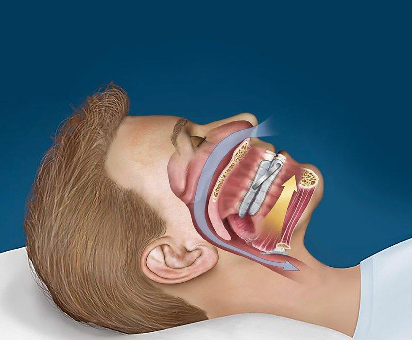 Dental sleep appliance  |Treating Obstructive Sleep Apnea| Sleep Better Wisconsin